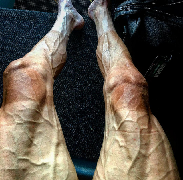 Tour De France Cyclist Shares Shocking Photo Of His Legs