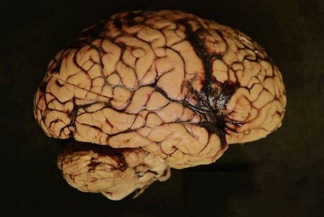 Large Majority of Football Players in BU Brain Bank Have CTE