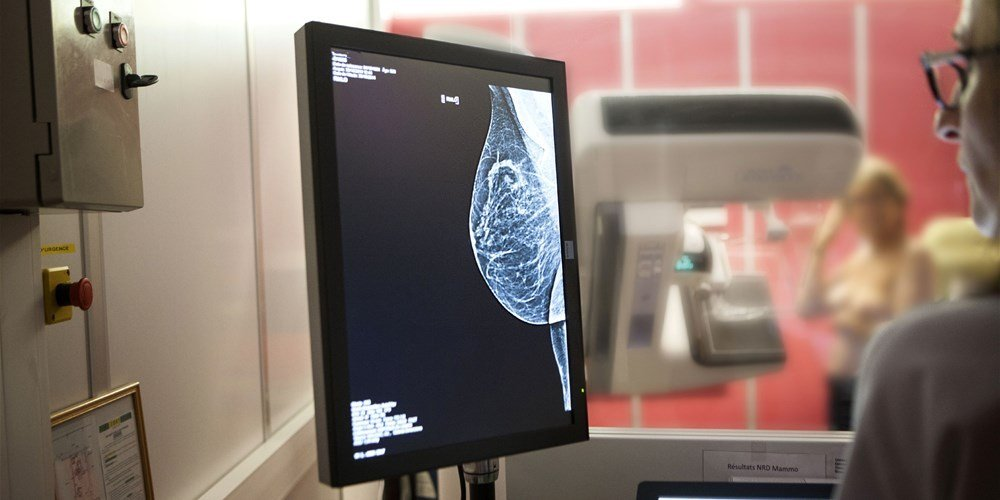 Study Says Many Women With Early Breast Cancer Might Not Need Chemo