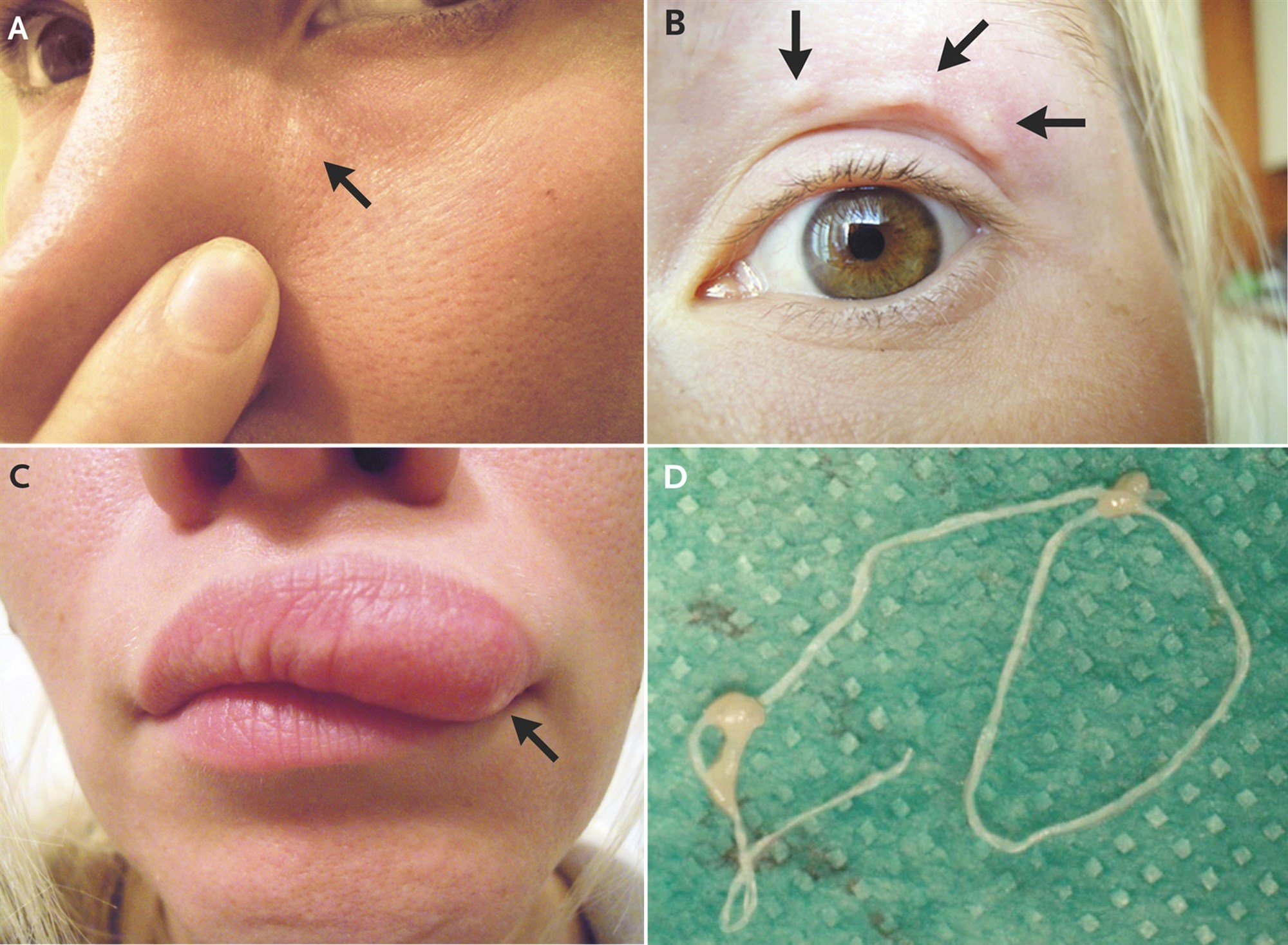 A woman who noticed moving lumps in her face was surprised to learn they were nematodes, probably transmitted by a mosquito bite in Russia, according to a report in the New England Journal of Medicine. (New England Journal of Medicine)